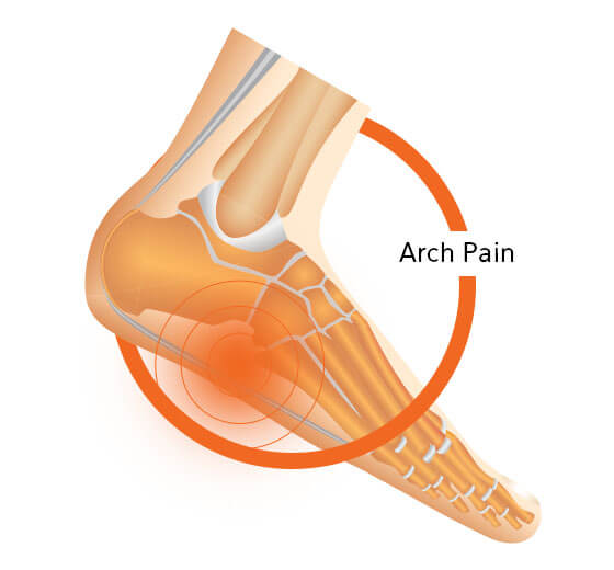 Arch Pain Foot Design