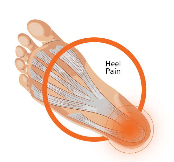 Heel Pain Foot Diagram