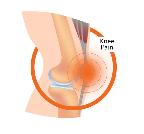Knee Pain Diagram Image