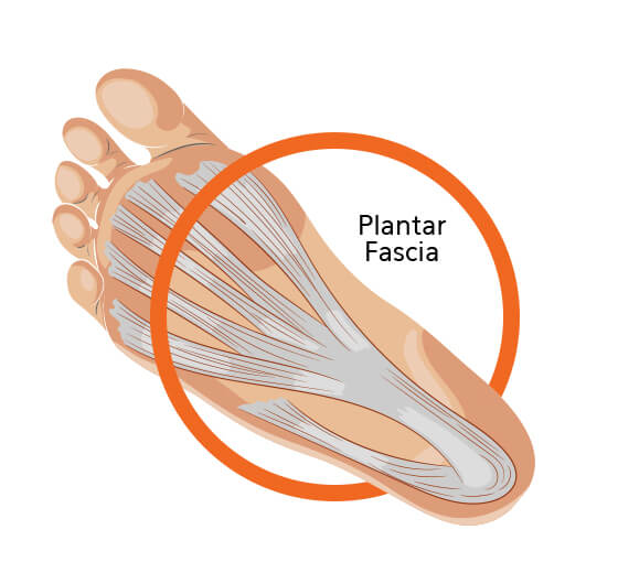 Plantar Fascia Foot Diagram